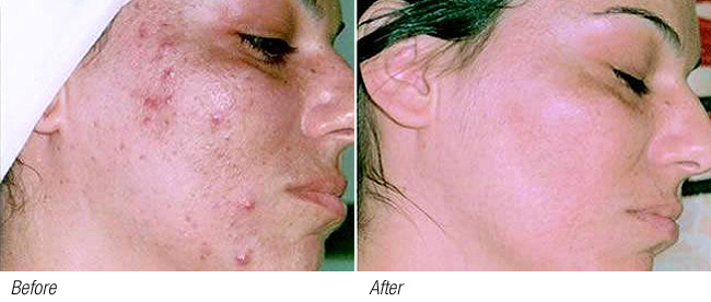 A course of treatments will calm inflamed skin and stimulate tissue regeneration and healing. The appearance of acne and skin blemishes is visibly reduced.