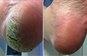 Callus peel before and after pictures